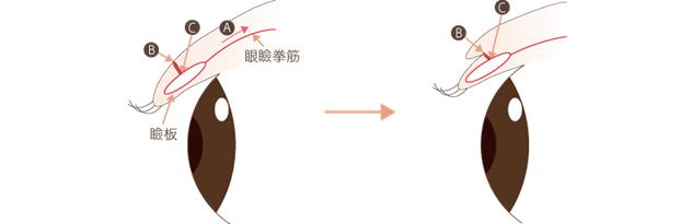 f:id:mizunomori-biyougeka:20180610233112p:plain