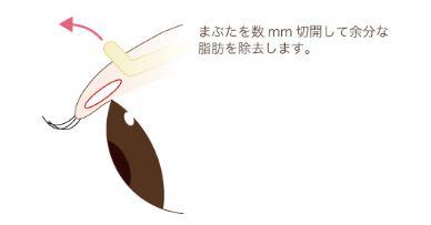 f:id:mizunomori-biyougeka:20180718161336j:plain