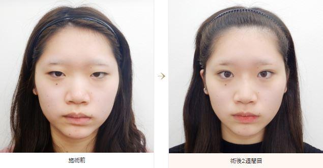 f:id:mizunomori-biyougeka:20180815182632j:plain
