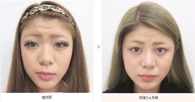 f:id:mizunomori-biyougeka:20180815183004j:plain
