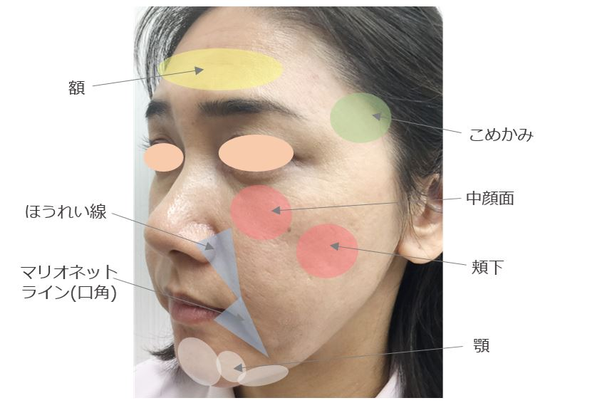 f:id:mizunomori-biyougeka:20180829140417j:plain