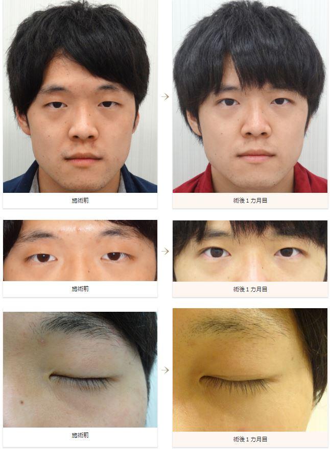 f:id:mizunomori-biyougeka:20180904111402j:plain