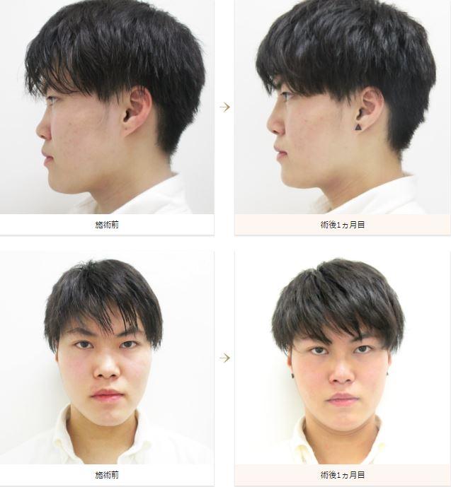 f:id:mizunomori-biyougeka:20180904111424j:plain