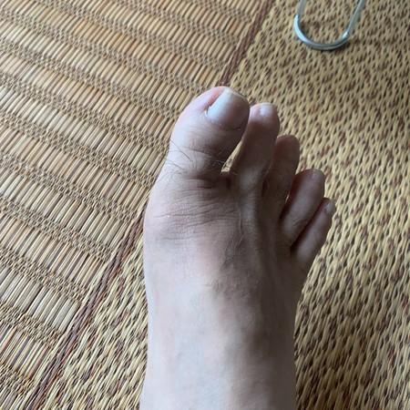 やっと癒えた 右足親指 付け根