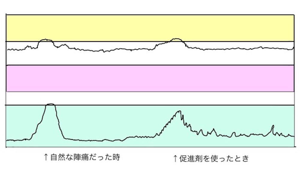 f:id:momongaa394:20200125125503j:image
