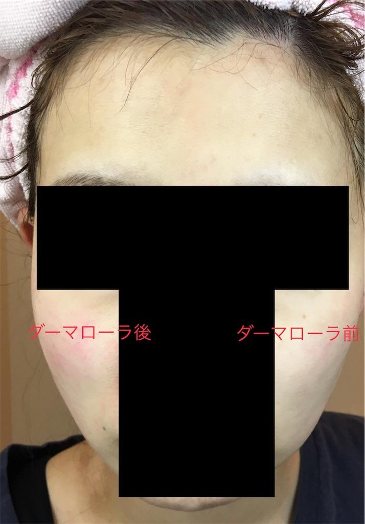 f:id:monotone-room:20190303191158j:image