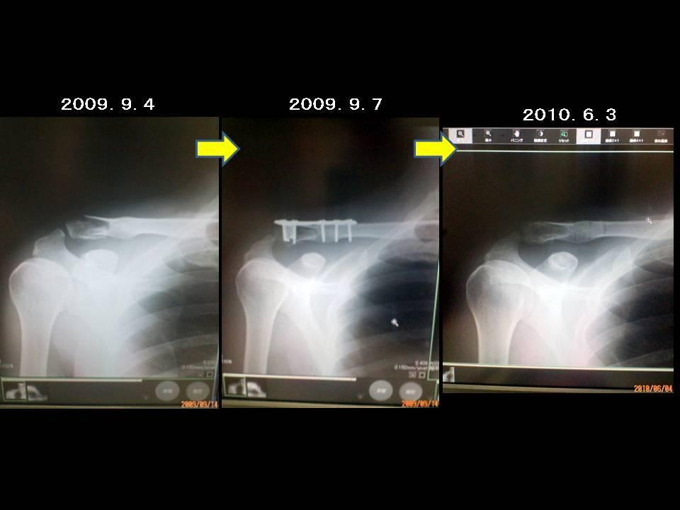 f:id:motoguzziV7Rider:20100607185735j:plain