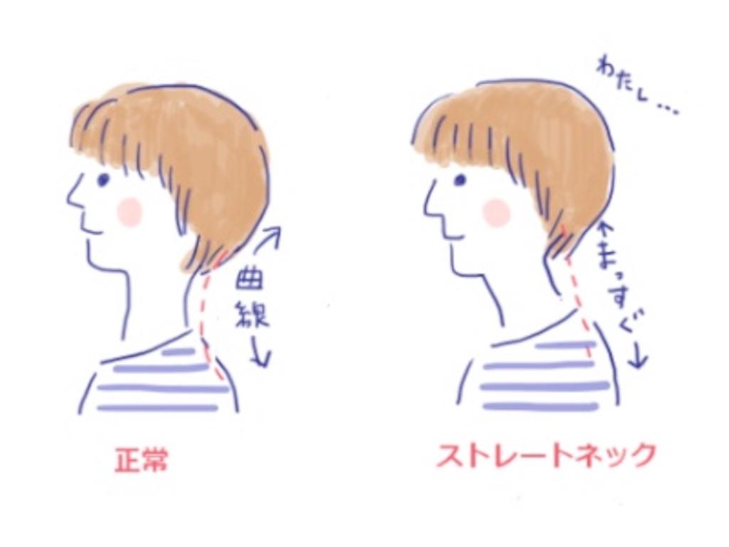 f:id:msatomi304:20170713221949j:image