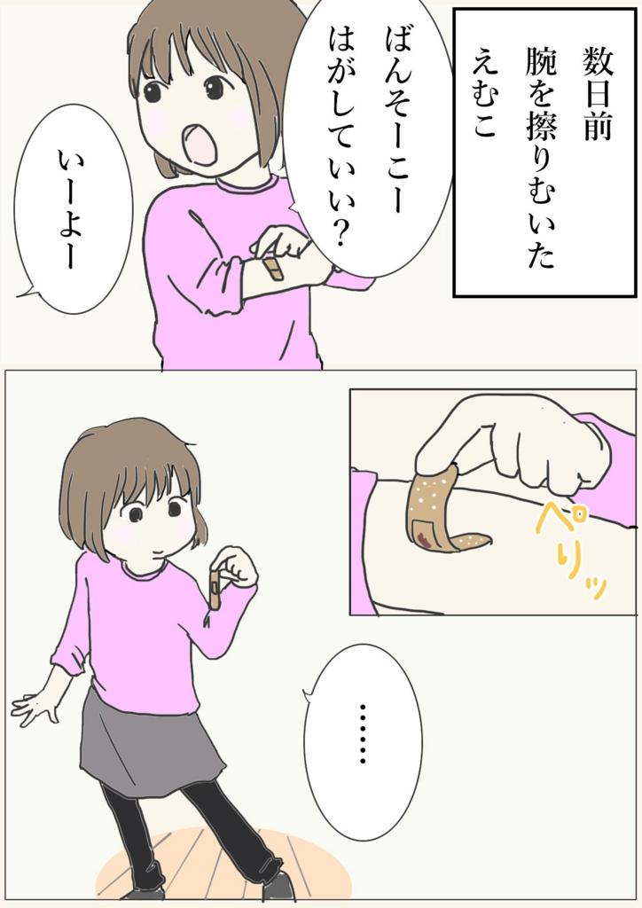 数日前、腕を擦りむいたえむこ。お母さん、絆創膏はがして良いー?いいよー。