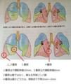 転移性肺がん切除状況