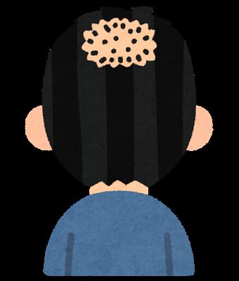 頭頂部ハゲ
