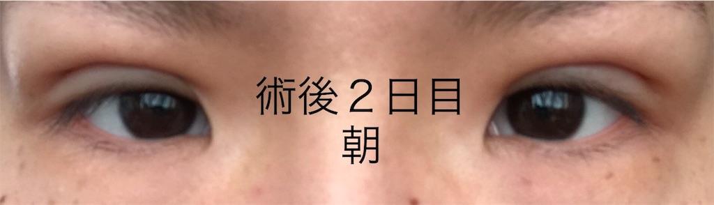 フォーエバー二重 口コミ 湘南美容外科