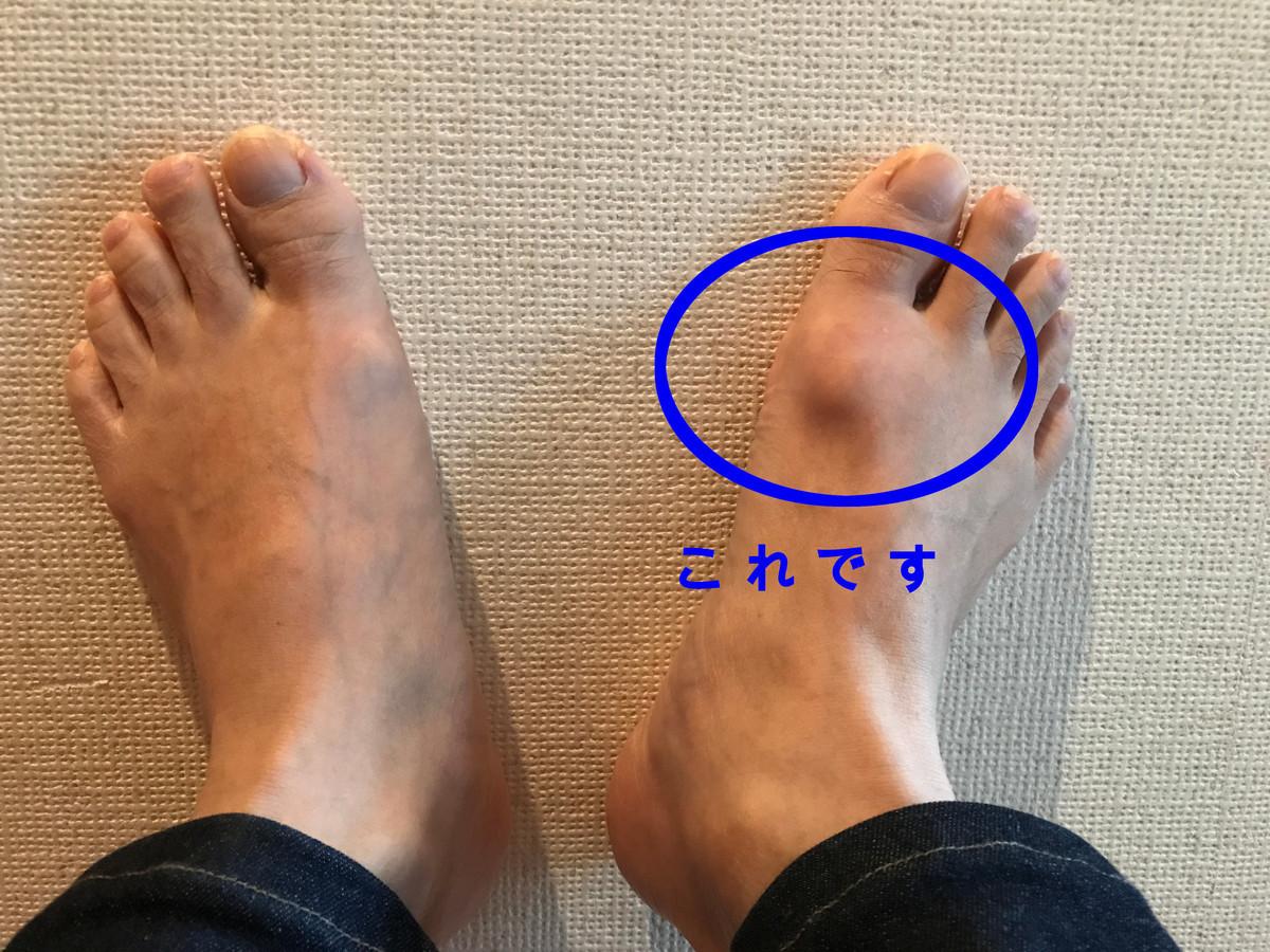 強剛母趾の足