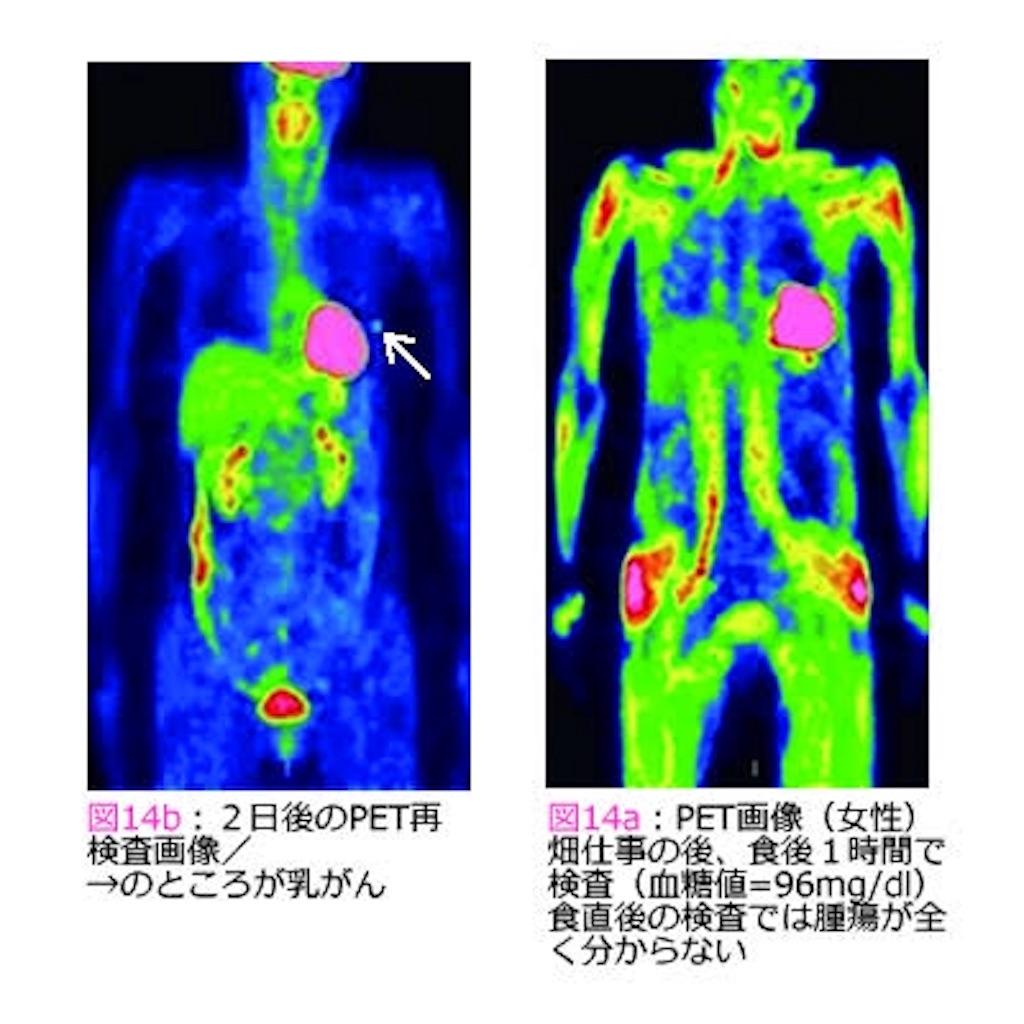 f:id:mutsukichikun:20190509120333j:image