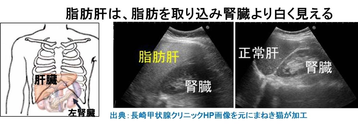 2-5-脂肪肝は脂肪を取り込み腎臓より白く見える
