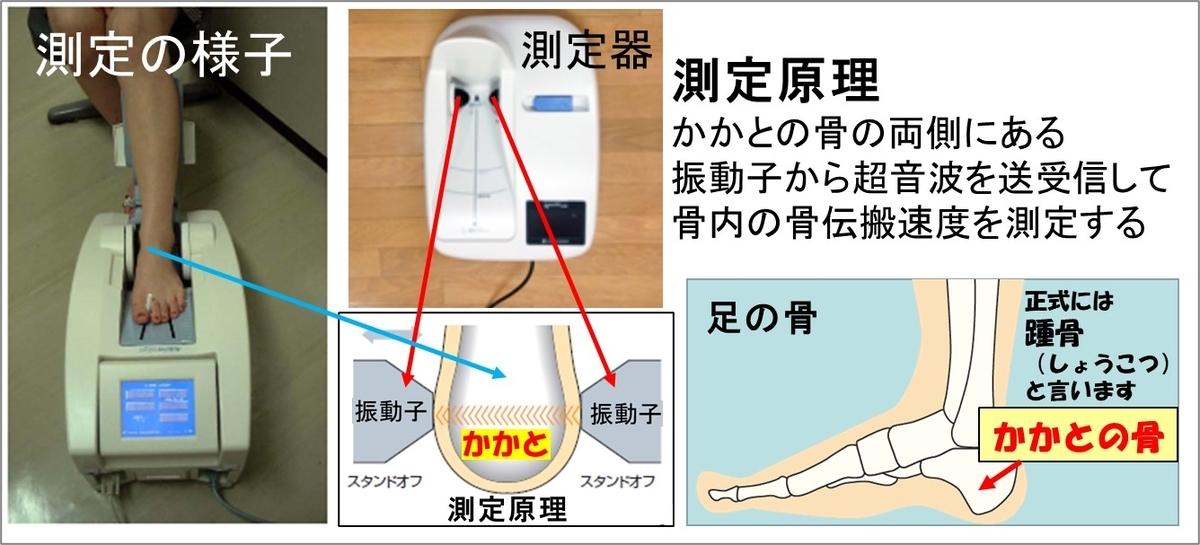 2-6-骨密度の測定方法