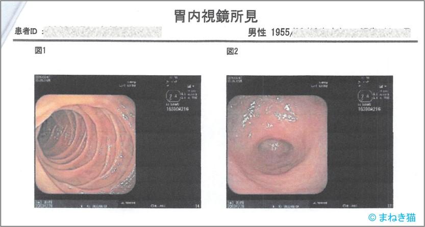 2-7-胃内視鏡の写真