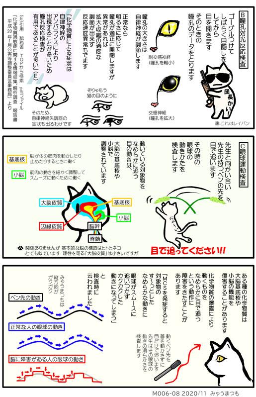 化学物質過敏症検査と診断M006-08瞳孔対光反応検査と眼球運動検査