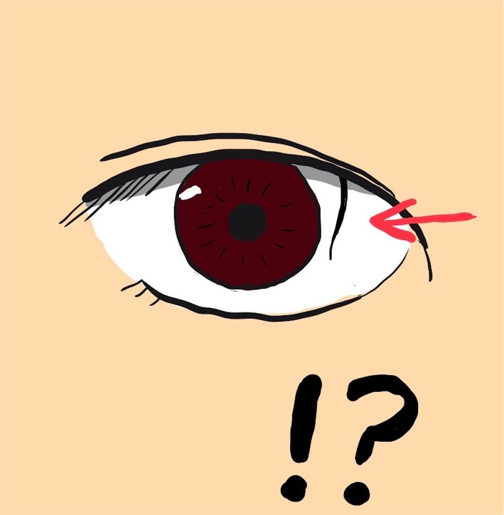 f:id:myo-ban:20200708214243j:image:w300