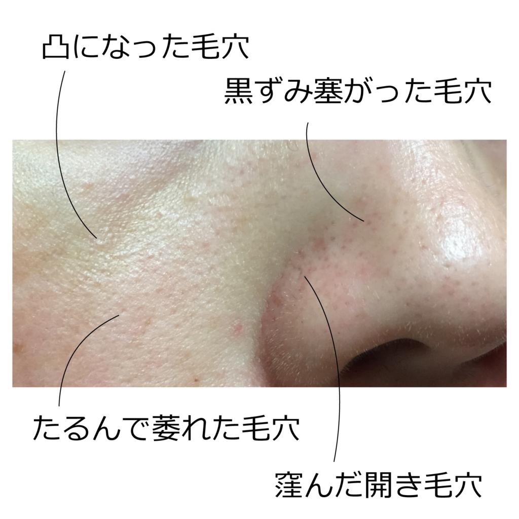 f:id:naganegi222:20171012025433j:plain