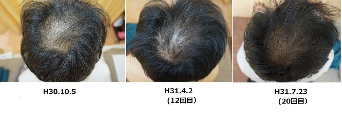 f:id:nagasaki-harikyusekkotsuin:20201015053758j:plain
