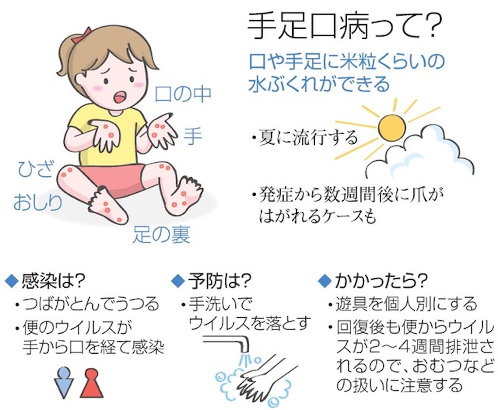 f:id:naginagi_sv:20190723002659j:image