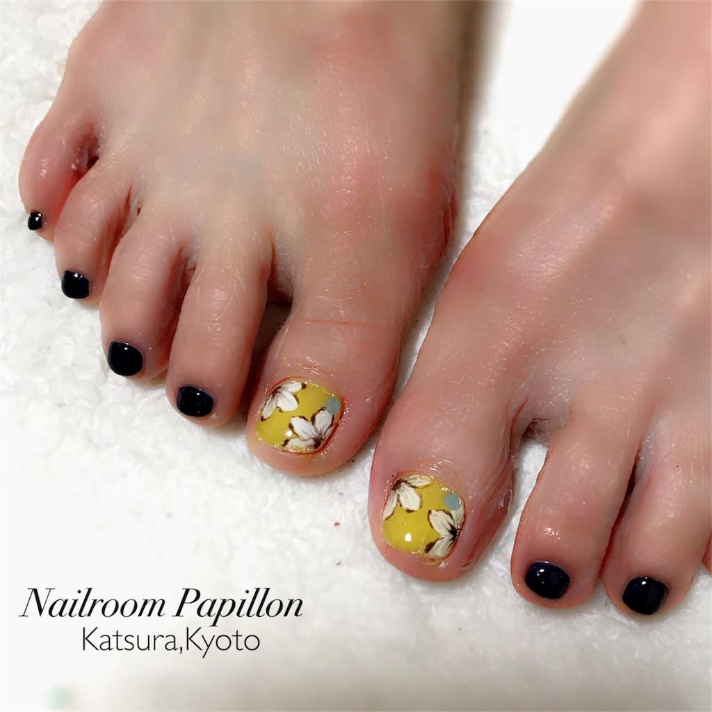 f:id:nailroompapillon:20170623085324j:image