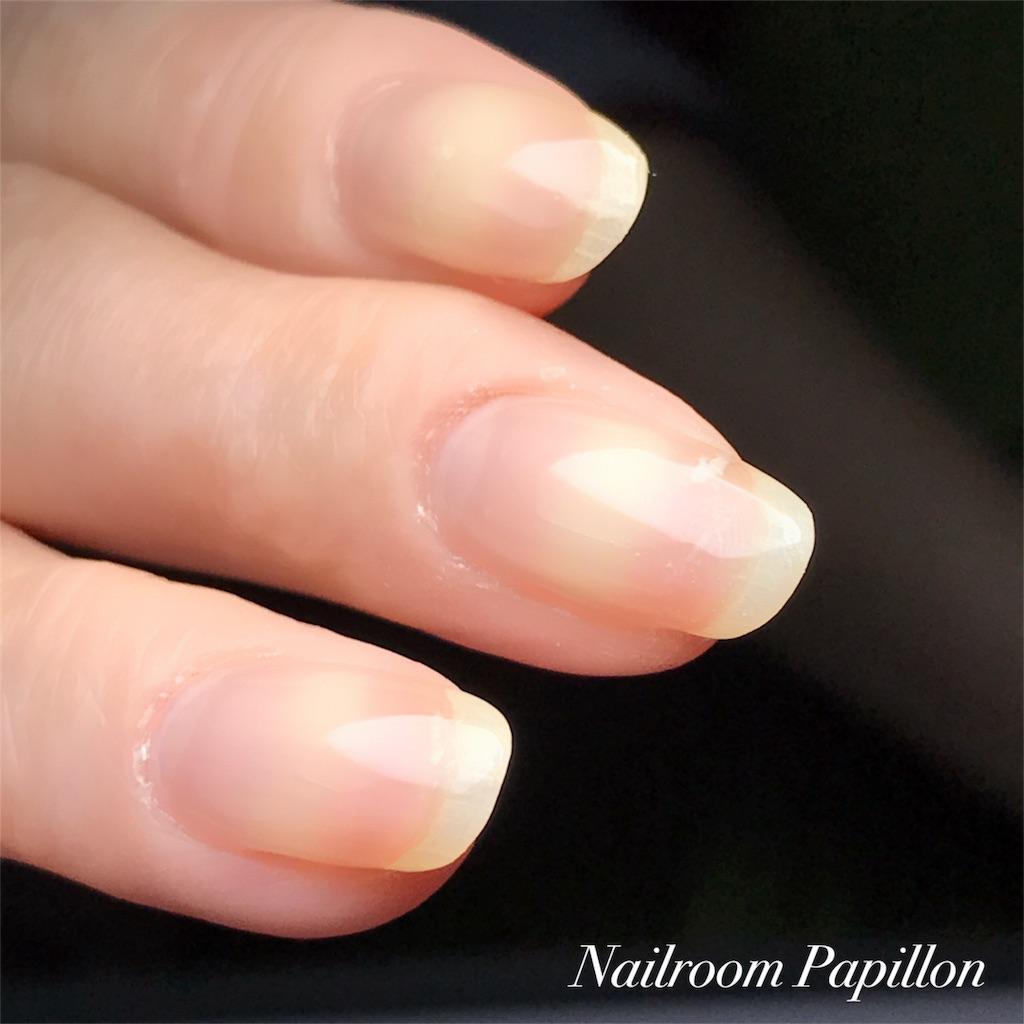 f:id:nailroompapillon:20170723104738j:image
