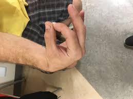 橈骨神経麻痺(橈骨神経高位麻痺)