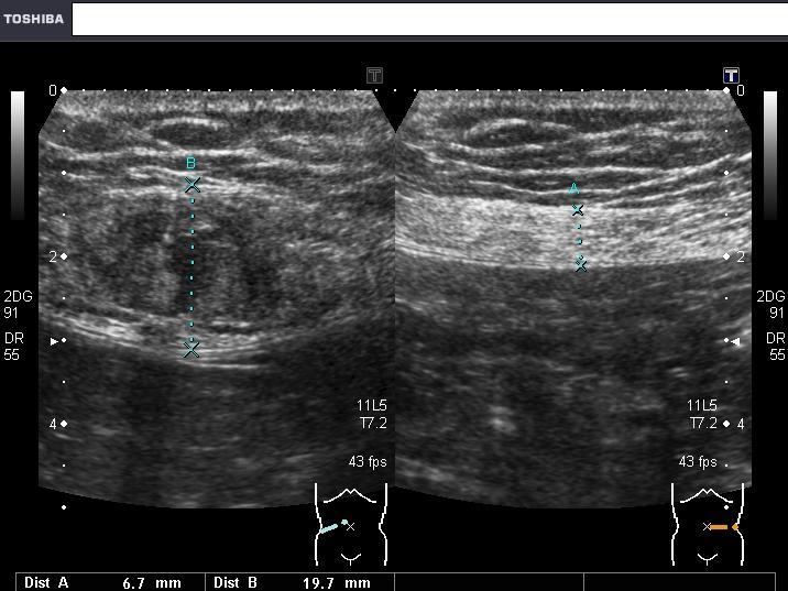 超音波エコー血腫の画像