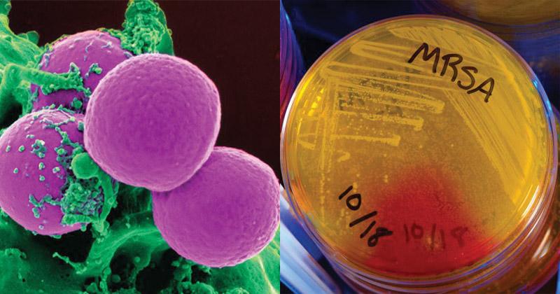 スポーツ環境における黄色ブドウ球菌(非常に深刻な深部感染症を引き起こすことがあり、急性・致死性の菌血症、壊死性肺炎、および壊死性筋膜炎が挙げられる)