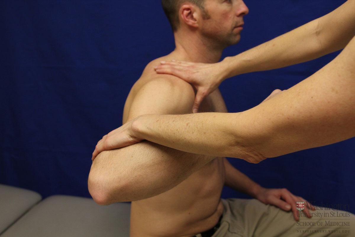 インピンジメント症候群を抑えるトレーニングとは(棘上筋を効果的に鍛え、肩峰下腔の狭小化を抑え機械的圧迫の増大とインピンジメントの助長を防ぐ)