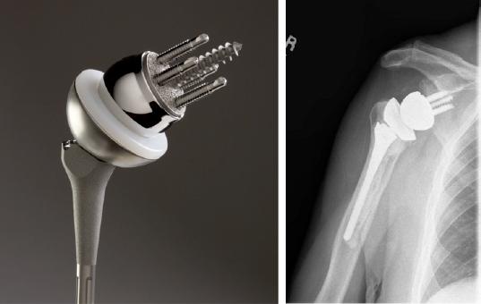 人工逆肩関節置換術後のリハビリテーション(肩甲下筋の修復過程により、関節の保護、三角筋と肩甲骨周囲筋群の強化、機能的な可動域の確保を目的とする)