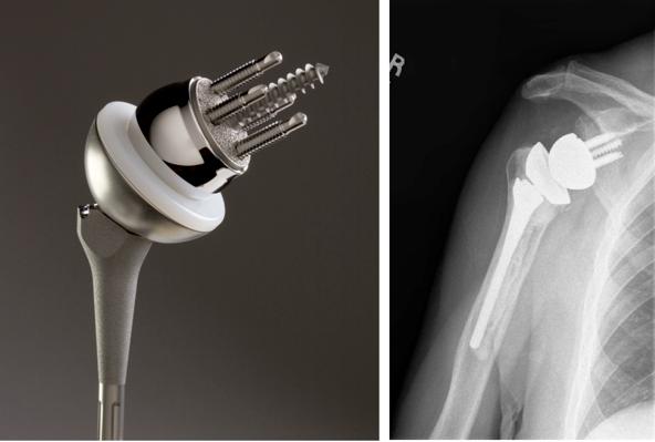 人工逆肩関節置換術後の合併症(前方脱臼は肩の内旋と内転だけではなく、外転と水平伸展と外旋を組み合わせた位置で最も起こりやすくなる)