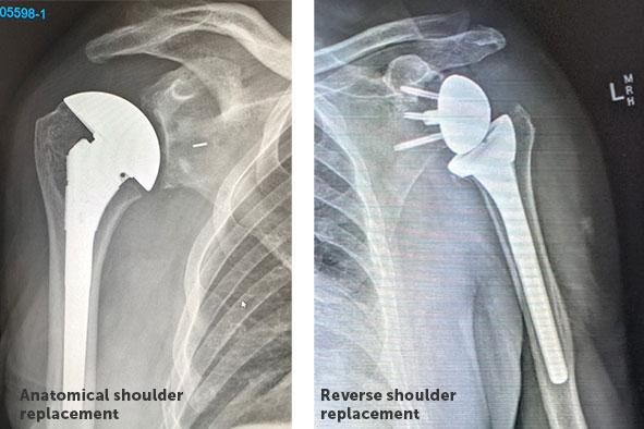 人工逆肩関節全置換術(関節炎が進行したクライアントやローテーターカフに修復不能な損傷のあるクライアントのために考案された複雑な手術法である)