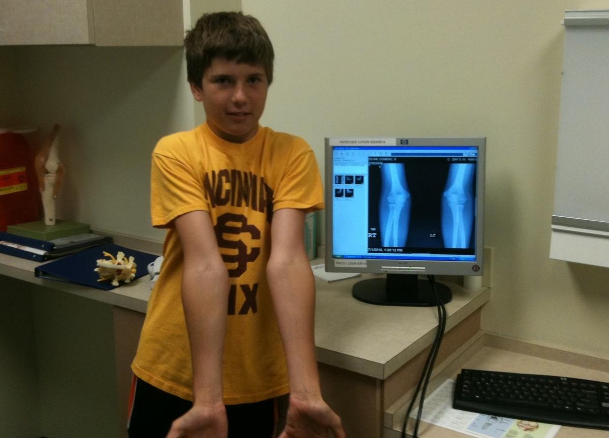 投球時の肘内側傷害の原因(コッキング期後半と加速期における内側モーメントにより上肢が前方へと加速され、肘内側への非常に大きく反復的な外反力が加わる)
