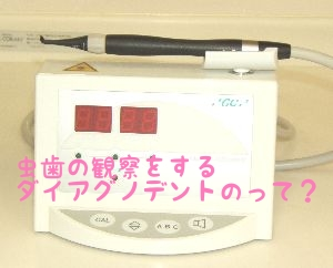 f:id:nakanobushika:20190404080450j:plain