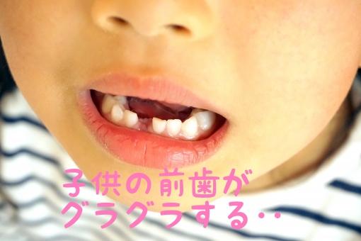 f:id:nakanobushika:20190530105154j:plain