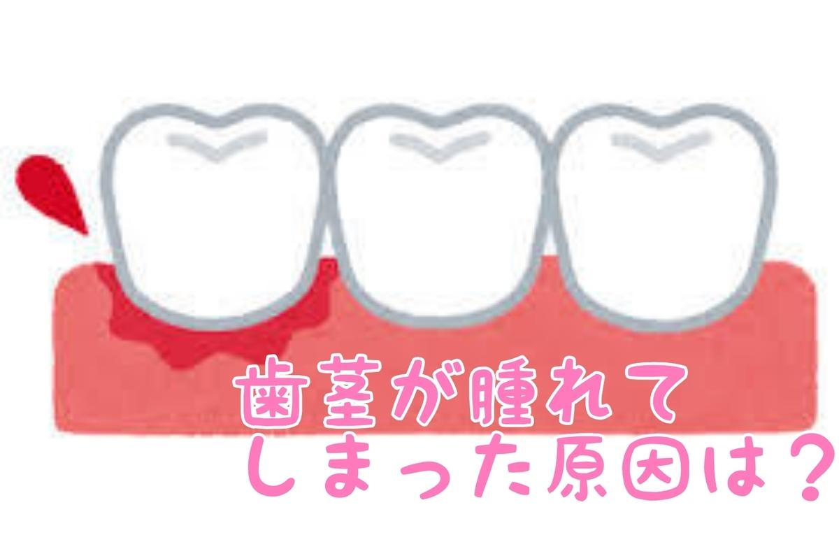 f:id:nakanobushika:20200304081703j:plain