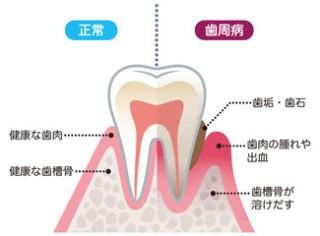 f:id:nakanobushika:20200521074938j:image