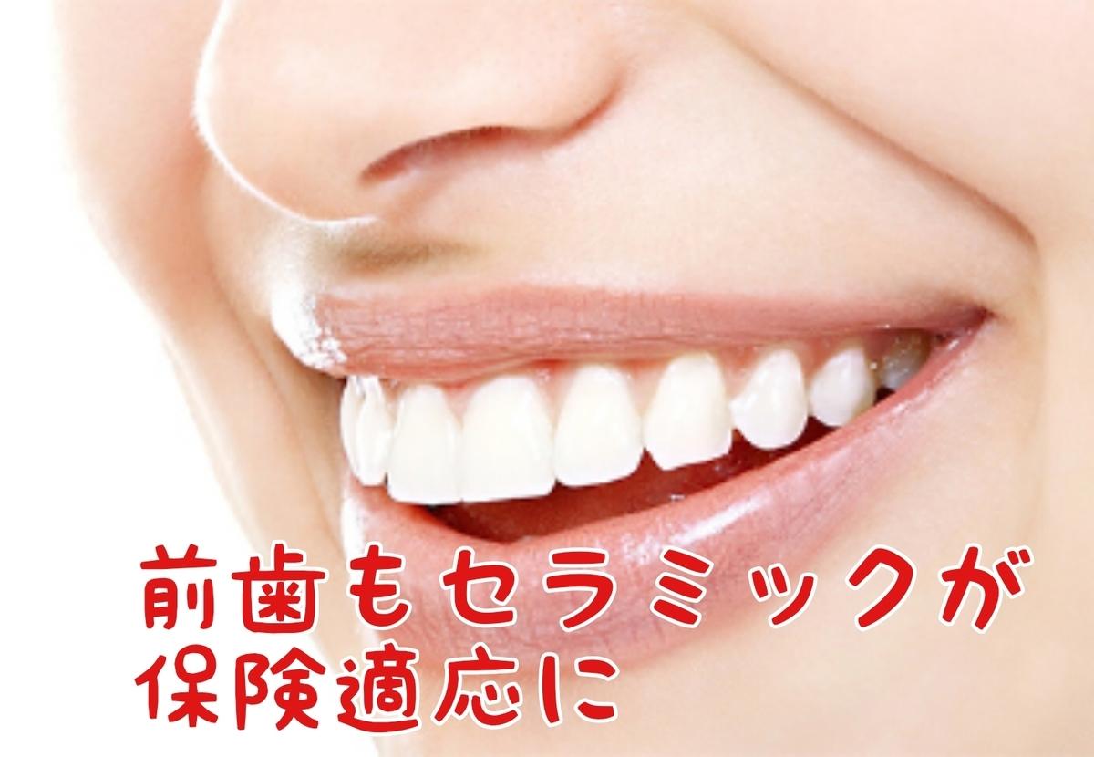 f:id:nakanobushika:20200903075256j:plain