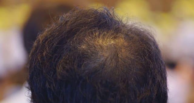 頭頂部が禿げた男性