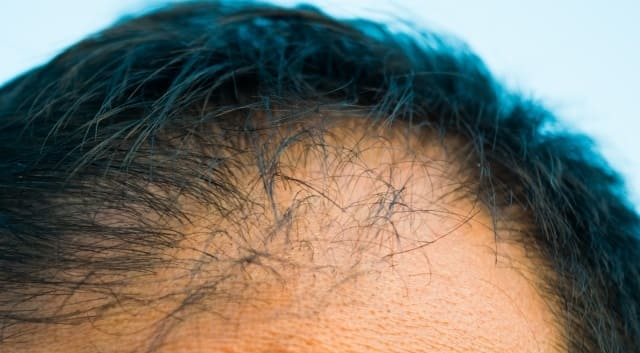 M字ハゲが進行した男性の頭部