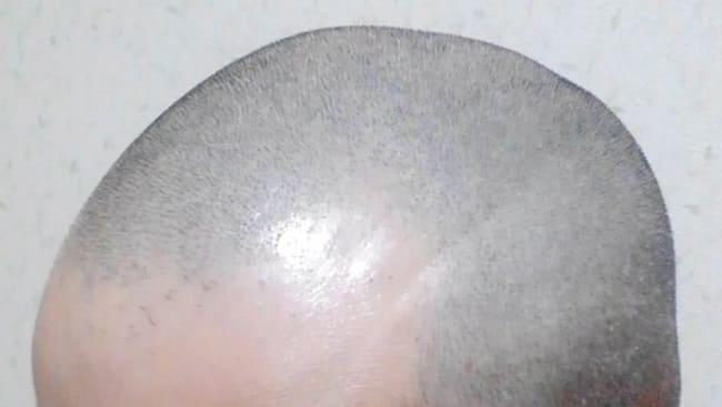 M字ハゲの男性の額部分
