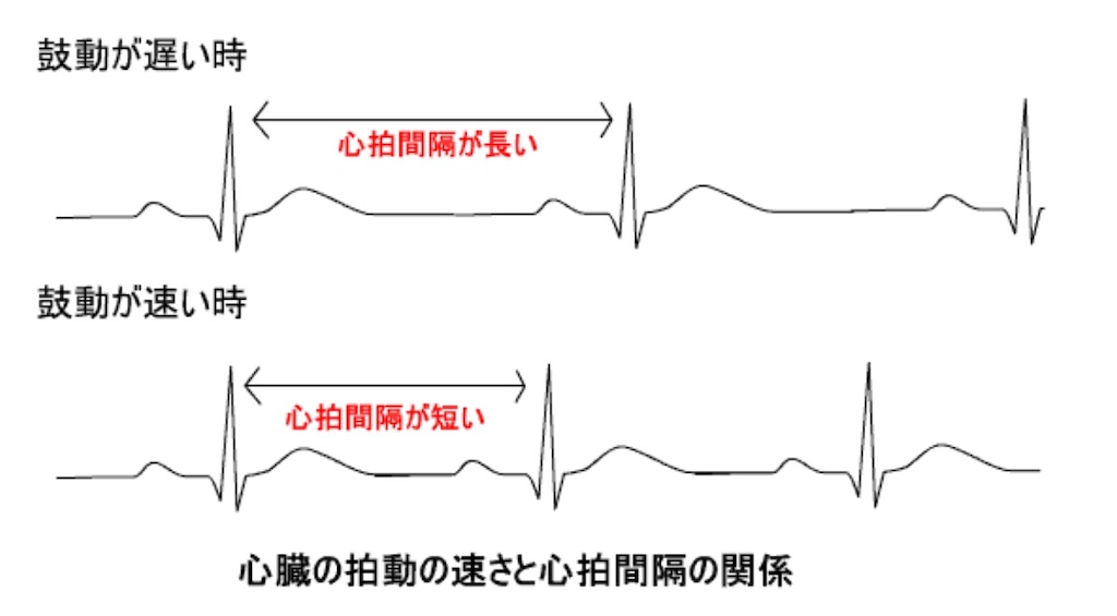 f:id:nasubi-healthcare:20200204175211j:image
