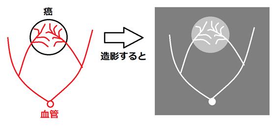 f:id:natonato840:20200118220529p:plain
