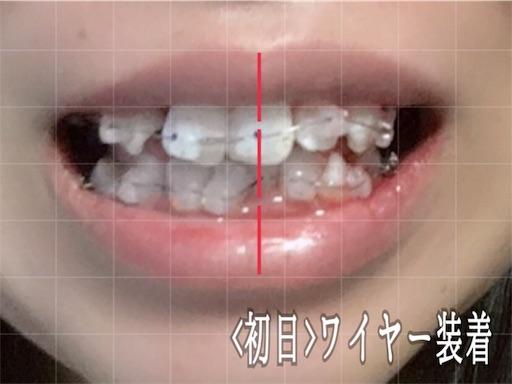 歯科矯正初日