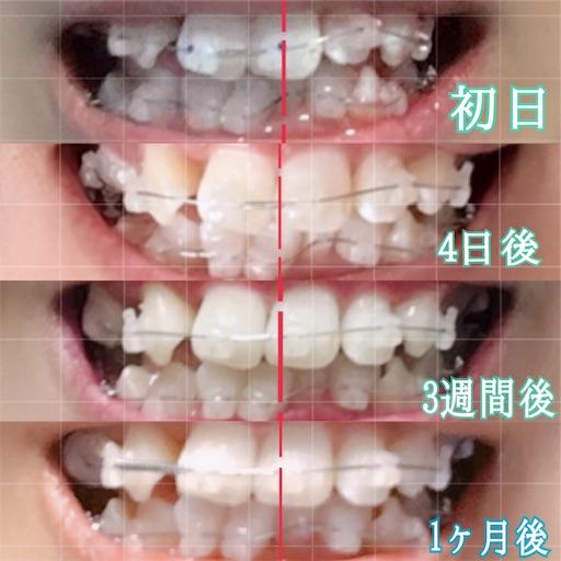 歯科矯正開始から1ヶ月の変化