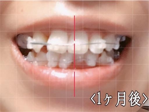 歯科矯正開始から1ヶ月後