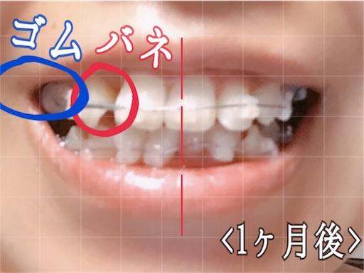 ゴムとバネで歯に隙間を作る